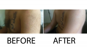 Before and after arm jpg